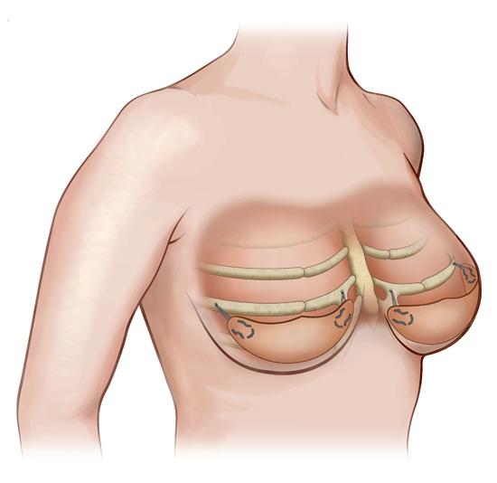 internal-bra